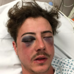 Tottenham fan beaten up by fellow supporter who mistook him for Chelsea fan