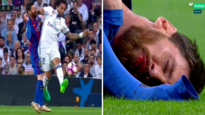 Bloody Mess-i ! Barca Star suffers gruesome facial injury