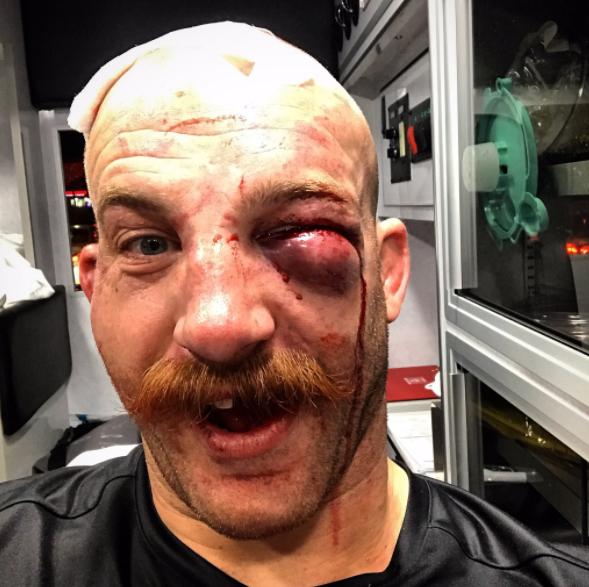 Ladies What do you think? UFC Fighter Cummins Tweets Swollen Eye Selfie