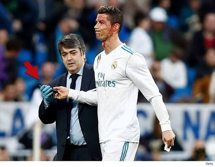 Cristiano Ronaldo suffers terrific head injury in Madrid big win over Deportivo