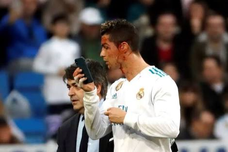 RON HEARTBREAK: Ronaldo checks head injury with Smartphone before leaving the pitch in Deportivo rout