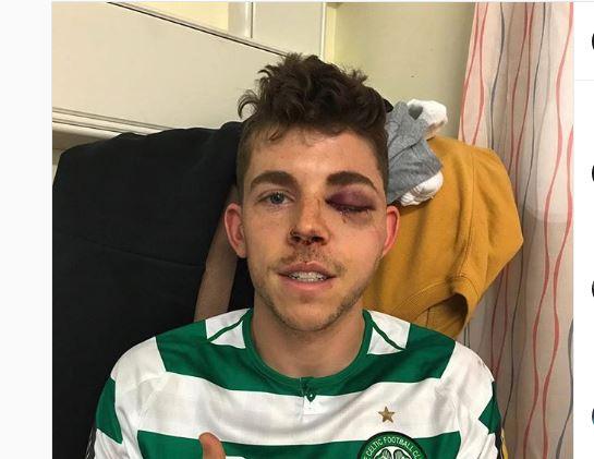 Celtic's Ryan Christie still grateful despite suffering Multiple facial fracture