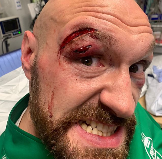 Fury paid cutsman £3000 for saving eye, gets 47 stitches and has been warned off Wilder fight
